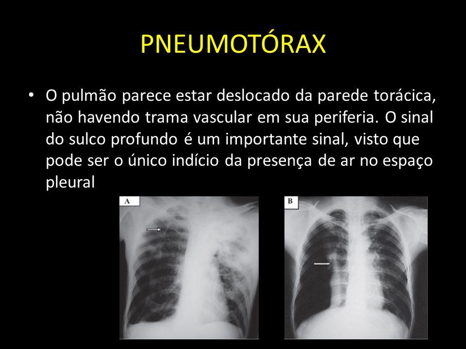 PNEUMOTÓRAX O pulmão parece estar deslocado da parede torácica, não havendo trama vascular em sua periferia. O sinal do sulco profundo é um importante