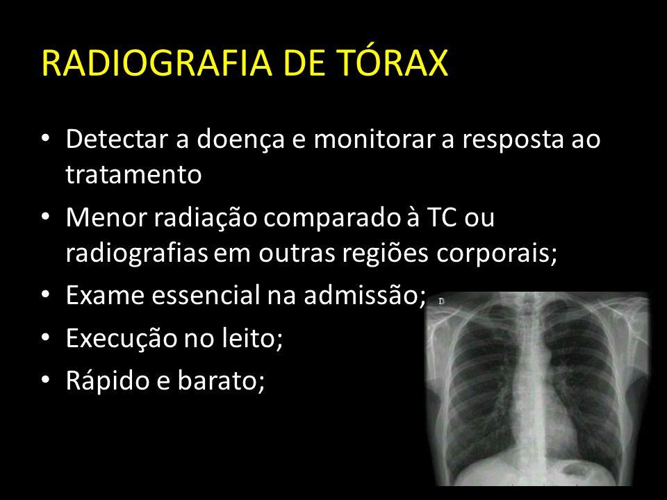 RADIOGRAFIA DE TÓRAX Detectar a doença e monitorar a resposta ao tratamento Menor radiação comparado à TC ou radiografias em outras regiões corporais;