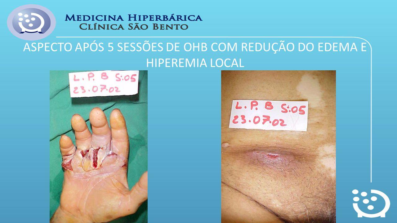 ASPECTO APÓS 5 SESSÕES DE OHB COM REDUÇÃO DO EDEMA E HIPEREMIA LOCAL