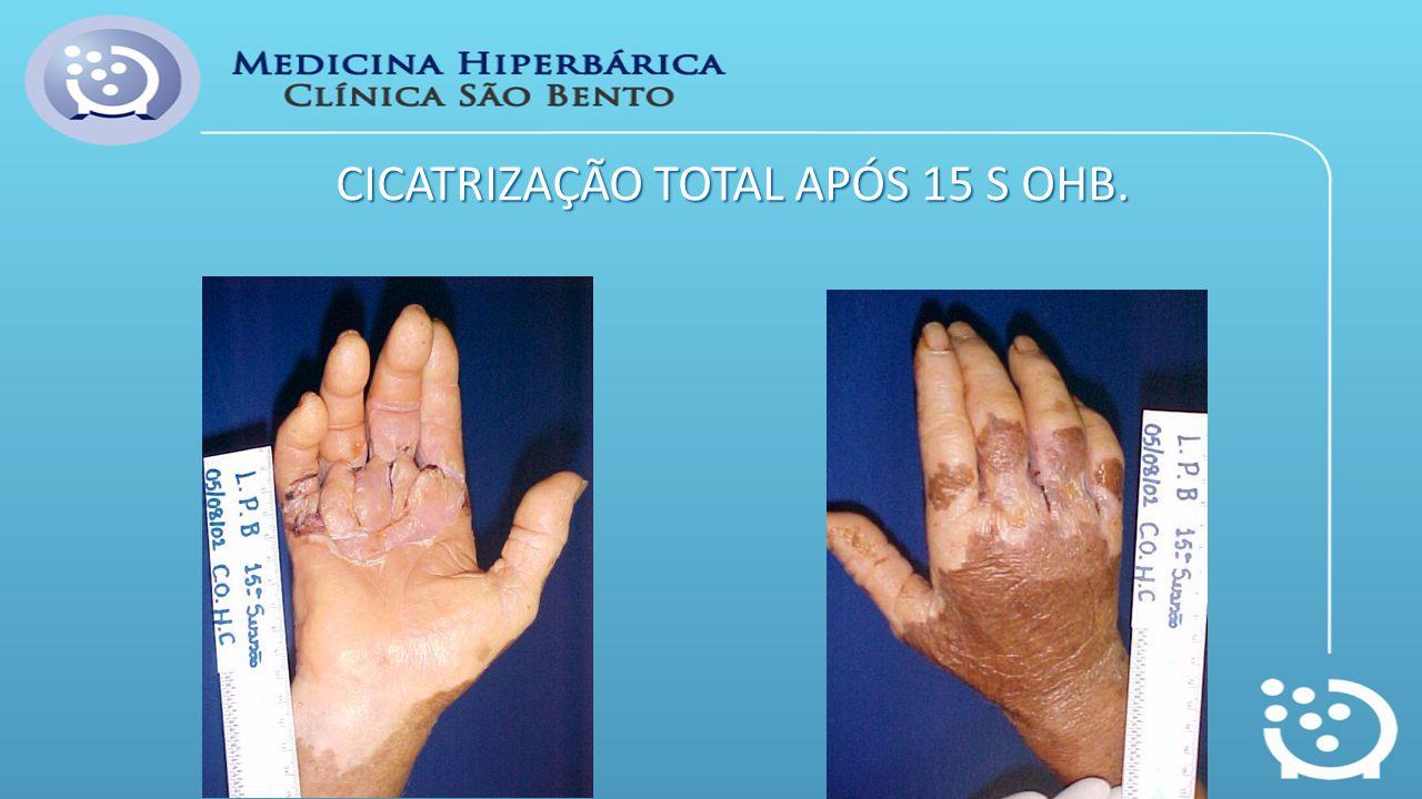 CICATRIZAÇÃO TOTAL APÓS 15 S OHB.