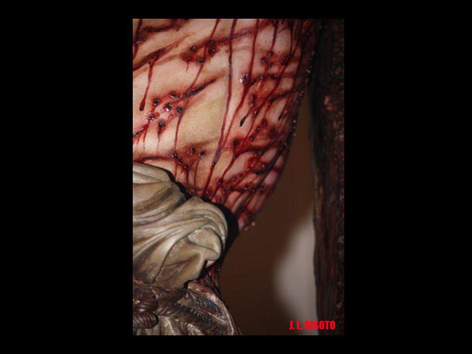 Las heridas reflejan la huella que dejan los látigos romanos de castigo, con bolas de metal astilladas en la punta para rasgar la carne. No hay zonas