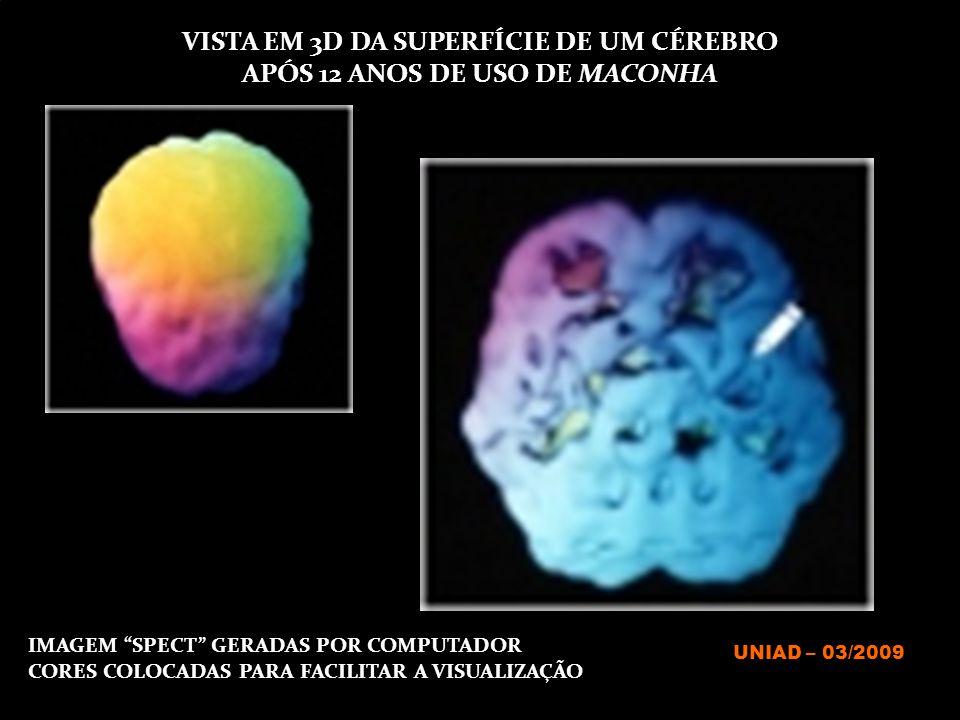 """IMAGEM """"SPECT"""" GERADAS POR COMPUTADOR CORES COLOCADAS PARA FACILITAR A VISUALIZAÇÃO VISTA EM 3D DA SUPERFÍCIE DE UM CÉREBRO APÓS 12 ANOS DE USO DE MAC"""
