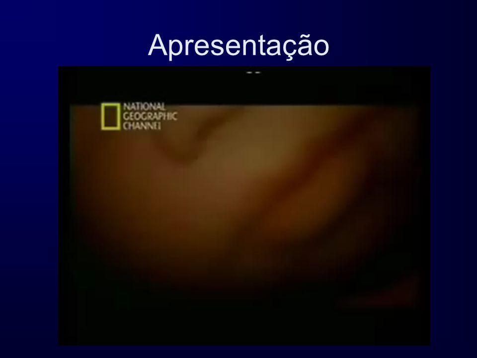 Rua 3A à Urbanização da AmeixoeiraRua 3A à Urbanização da Ameixoeira Área 3, Lote 1, Loja AÁrea 3, Lote 1, Loja A 1750 – 084 Lisboa1750 – 084 Lisboa Tel: 217 552 603 Fax: 217 552 604Tel: 217 552 603 Fax: 217 552 604 E-mail: apfn@apfn.com.ptE-mail: apfn@apfn.com.ptapfn@apfn.com.pt http://www.apfn.com.pthttp://www.apfn.com.pthttp://www.apfn.com.pt APFN Associação Portuguesa de Famílias Numerosas Sede: