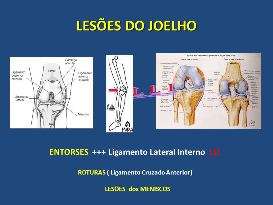LESÕES DO JOELHO ENTORSES +++ Ligamento Lateral Interno LLI ROTURAS ( Ligamento Cruzado Anterior) LESÕES dos MENISCOS