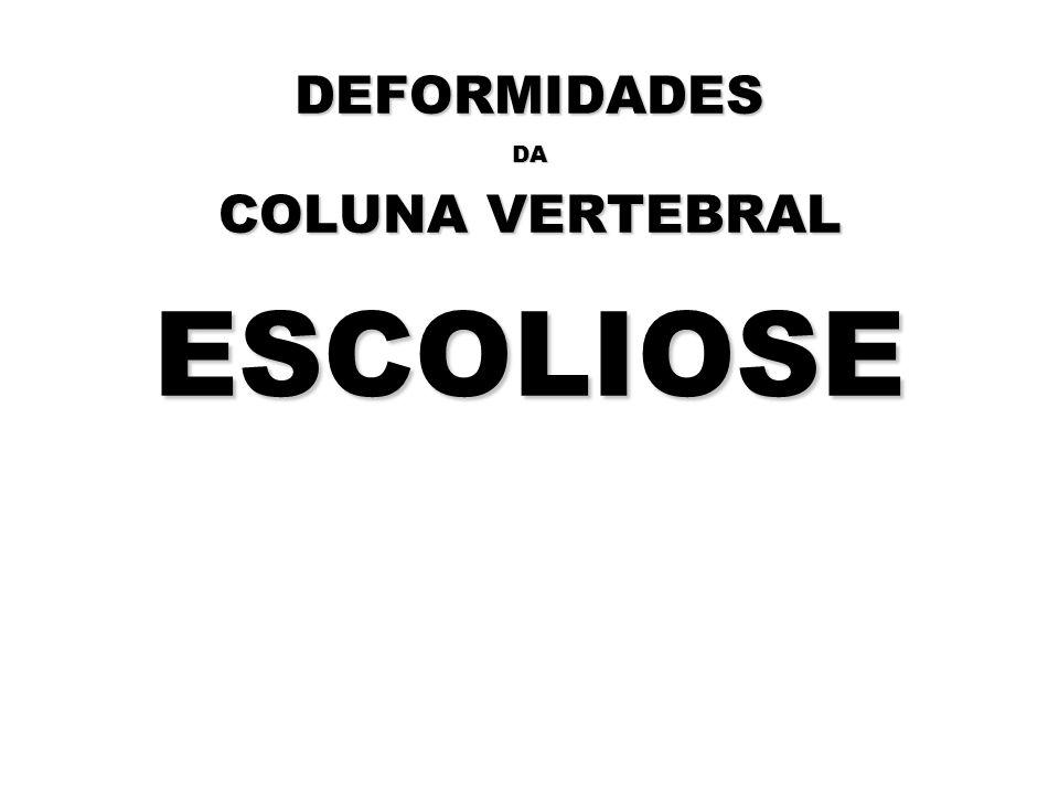 DEFORMIDADES DA COLUNA VERTEBRAL ESCOLIOSE Rockies