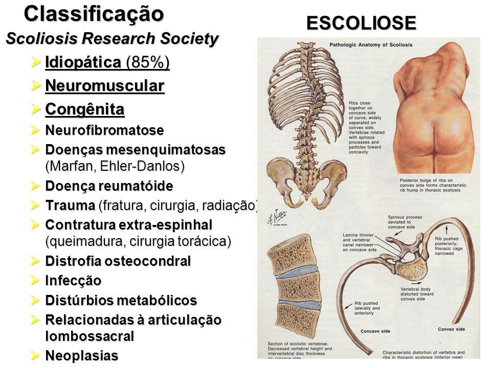 ESCOLIOSEClassificação  Idiopática (85%)  Neuromuscular  Congênita  Neurofibromatose  Doenças mesenquimatosas (Marfan, Ehler-Danlos)  Doença reu