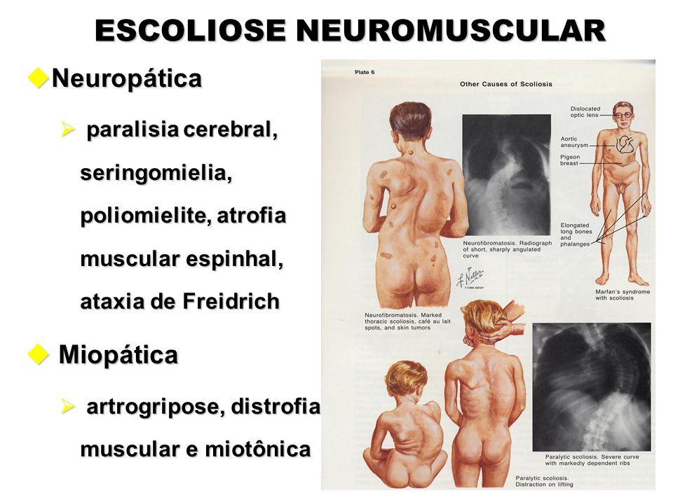 ESCOLIOSE NEUROMUSCULAR uNeuropática  paralisia cerebral, seringomielia, poliomielite, atrofia muscular espinhal, ataxia de Freidrich u Miopática  a