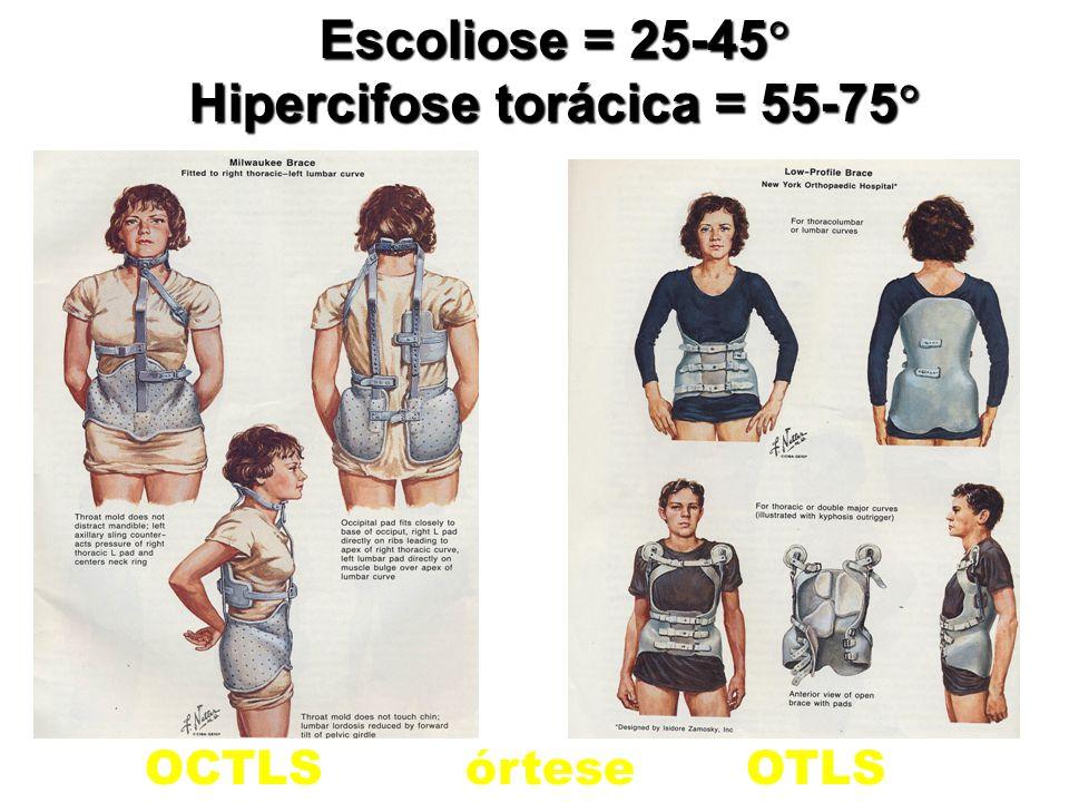 OCTLSórteseOTLS Escoliose = 25-45  Hipercifose torácica = 55-75 