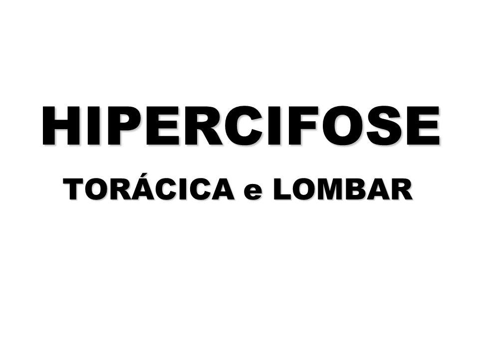 HIPERCIFOSE TORÁCICA e LOMBAR HIPERCIFOSE TORÁCICA e LOMBAR