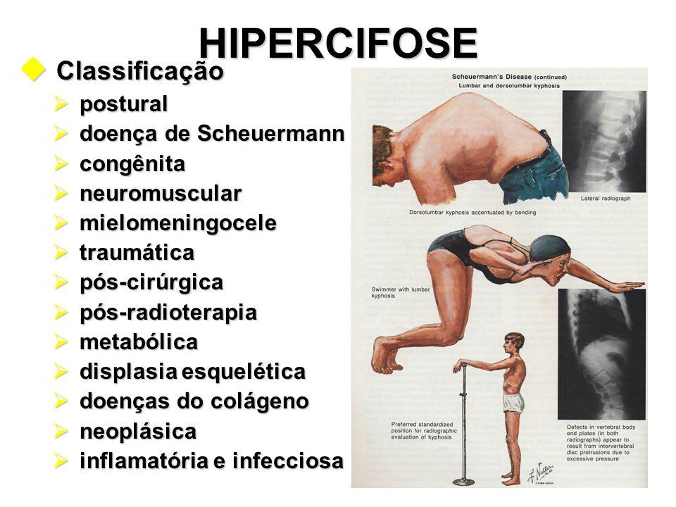 HIPERCIFOSE u Classificação  postural  doença de Scheuermann  congênita  neuromuscular  mielomeningocele  traumática  pós-cirúrgica  pós-radio