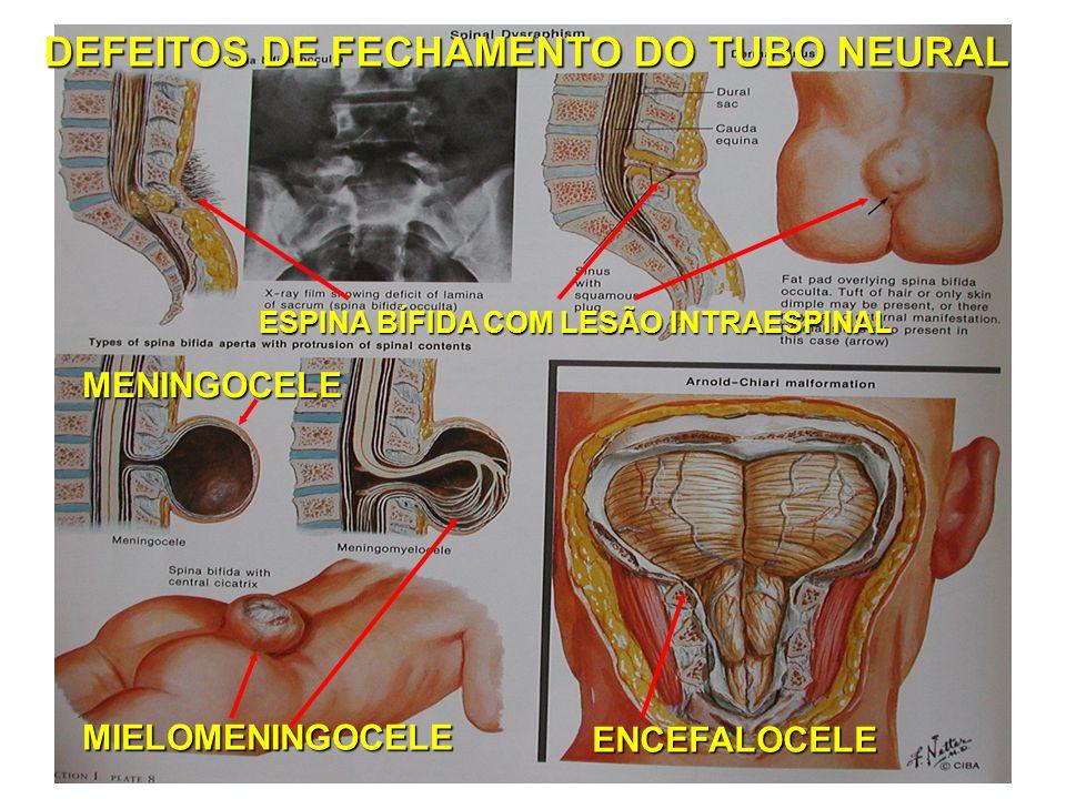 DEFEITOS DE FECHAMENTO DO TUBO NEURAL MIELOMENINGOCELE ESPINA BÍFIDA COM LESÃO INTRAESPINAL ENCEFALOCELE MENINGOCELE
