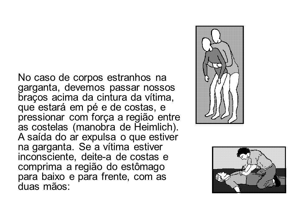 No caso de corpos estranhos na garganta, devemos passar nossos braços acima da cintura da vítima, que estará em pé e de costas, e pressionar com força
