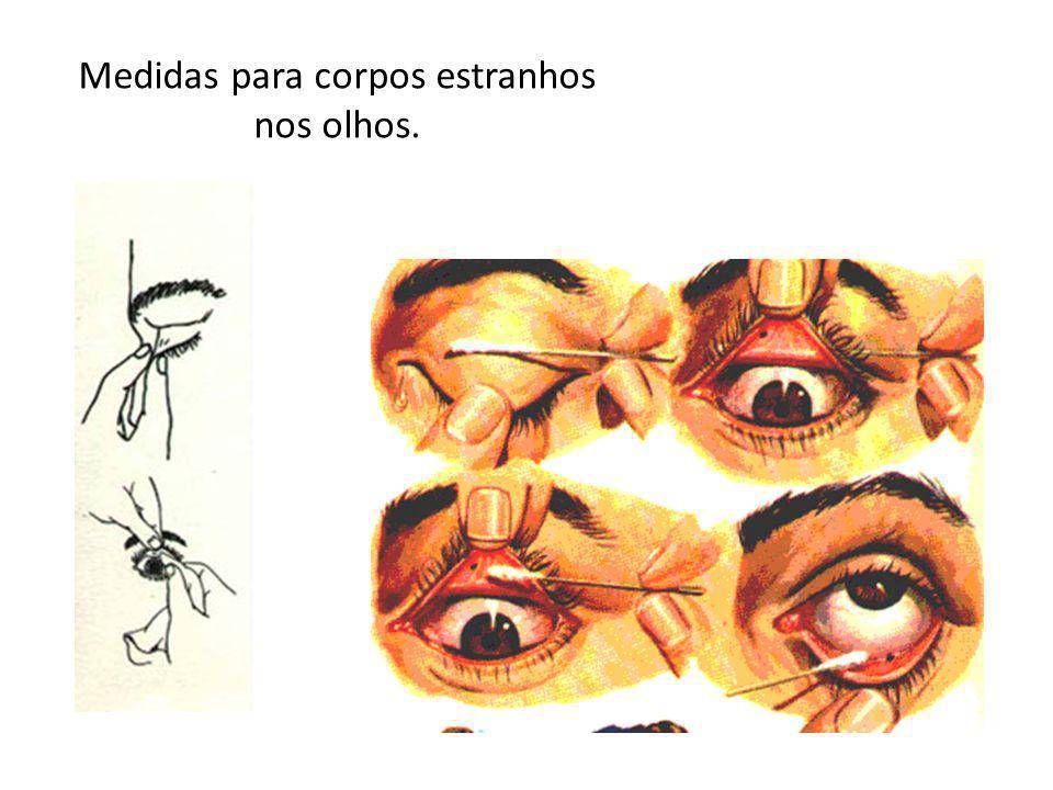 Se o processo anterior falhar, deve-se lavar o olho afetado com água limpa, de preferência usando conta–gotas.