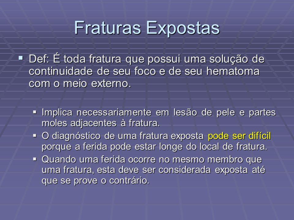 Fraturas Expostas  Def: É toda fratura que possui uma solução de continuidade de seu foco e de seu hematoma com o meio externo.