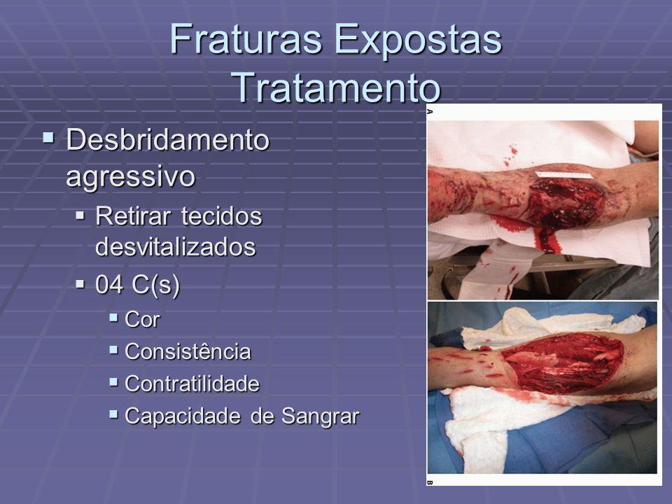 Fraturas Expostas Tratamento  Desbridamento agressivo  Retirar tecidos desvitalizados  04 C(s)  Cor  Consistência  Contratilidade  Capacidade de Sangrar