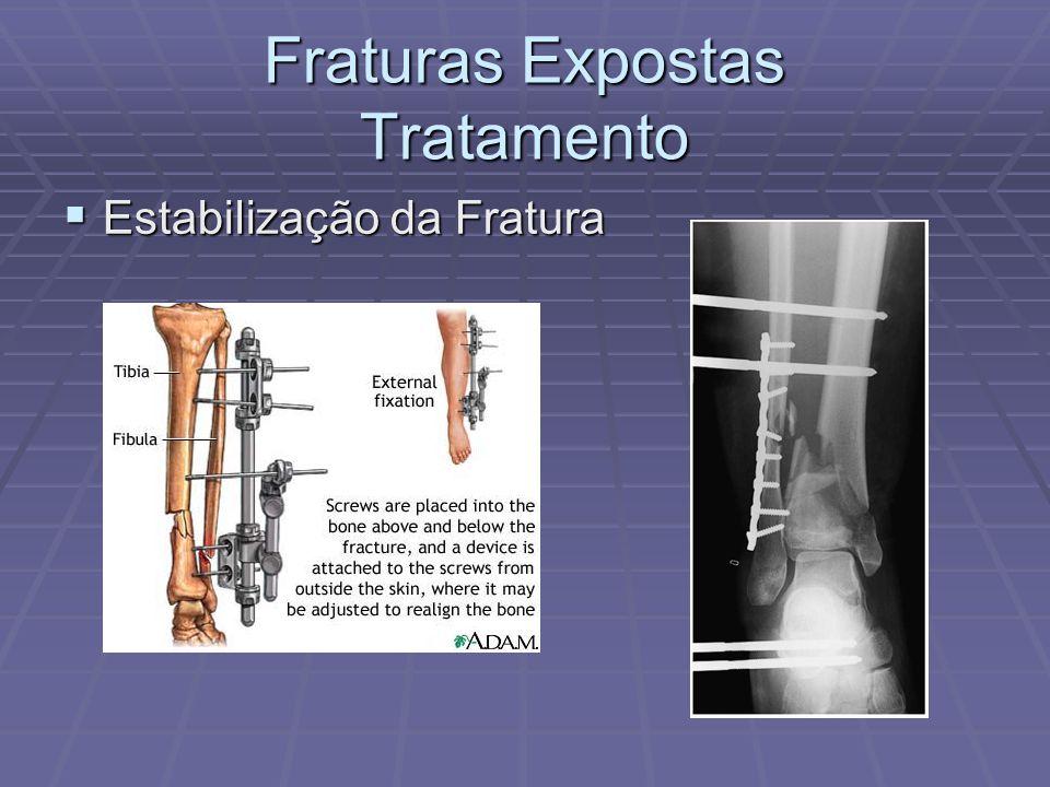 Fraturas Expostas Tratamento  Estabilização da Fratura