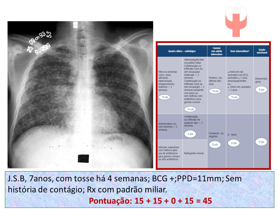 J.S.B, 7anos, com tosse há 4 semanas; BCG +;PPD=11mm; Sem história de contágio; Rx com padrão miliar. Pontuação: 15 + 15 + 0 + 15 = 45