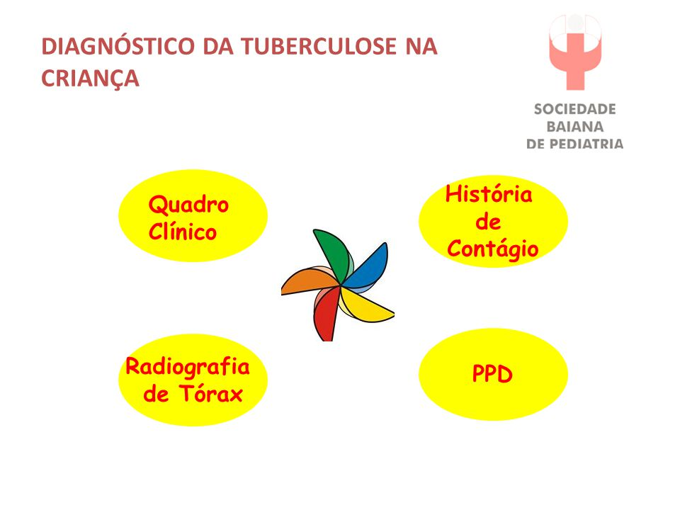 DIAGNÓSTICO DA TUBERCULOSE NA CRIANÇA Quadro Clínico História de Contágio Radiografia de Tórax PPD