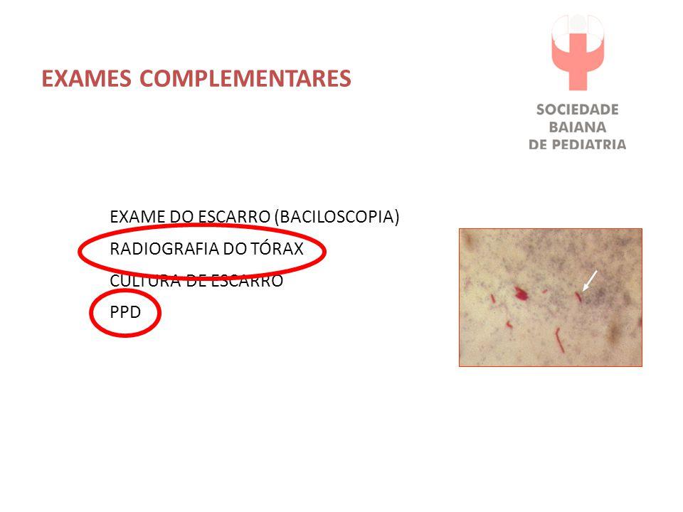 EXAMES COMPLEMENTARES EXAME DO ESCARRO (BACILOSCOPIA) RADIOGRAFIA DO TÓRAX CULTURA DE ESCARRO PPD
