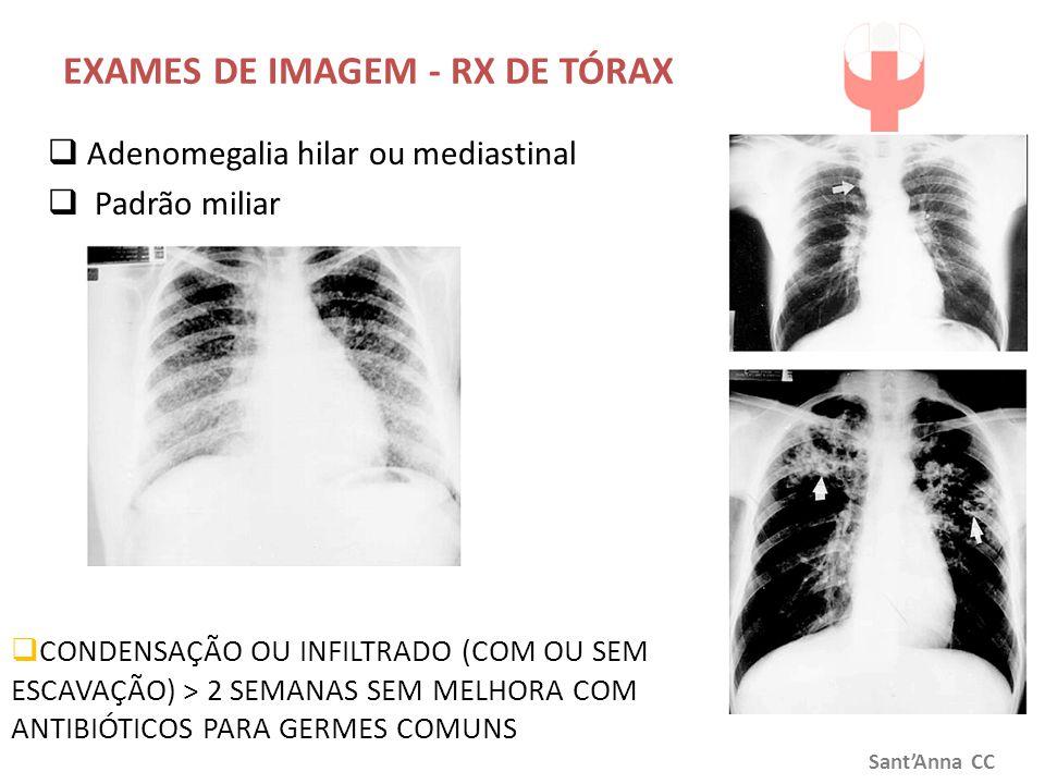 EXAMES DE IMAGEM - RX DE TÓRAX  CONDENSAÇÃO OU INFILTRADO (COM OU SEM ESCAVAÇÃO) > 2 SEMANAS SEM MELHORA COM ANTIBIÓTICOS PARA GERMES COMUNS Sant'Ann