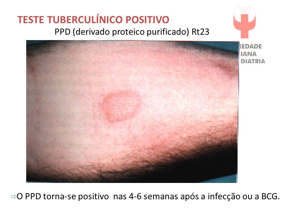  O PPD torna-se positivo nas 4-6 semanas após a infecção ou a BCG. PPD (derivado proteico purificado) Rt23 TESTE TUBERCULÍNICO POSITIVO