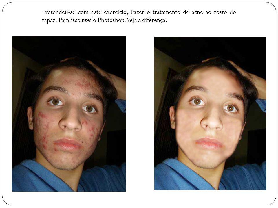 Pretendeu-se com este exercício, Fazer o tratamento de acne ao rosto do rapaz. Para isso usei o Photoshop. Veja a diferença.