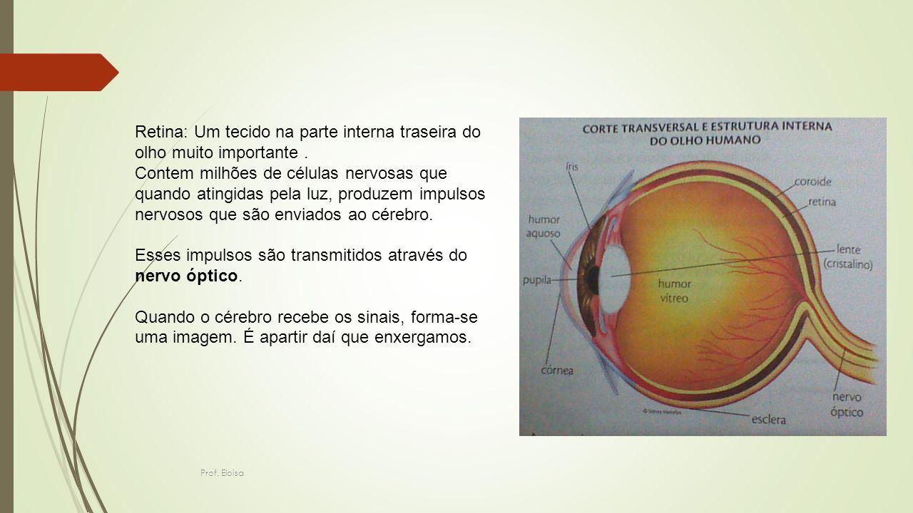 Retina: Um tecido na parte interna traseira do olho muito importante. Contem milhões de células nervosas que quando atingidas pela luz, produzem impul
