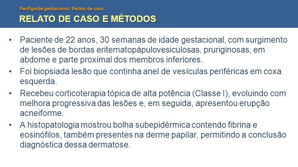 Penfigoide gestacional: Relato de caso RELATO DE CASO E MÉTODOS Paciente de 22 anos, 30 semanas de idade gestacional, com surgimento de lesões de bord