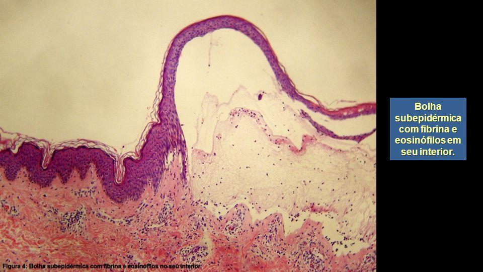 Bolha subepidérmica com fibrina e eosinófilos em seu interior.