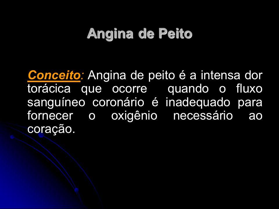Angina de Peito Conceito: Angina de peito é a intensa dor torácica que ocorre quando o fluxo sanguíneo coronário é inadequado para fornecer o oxigênio