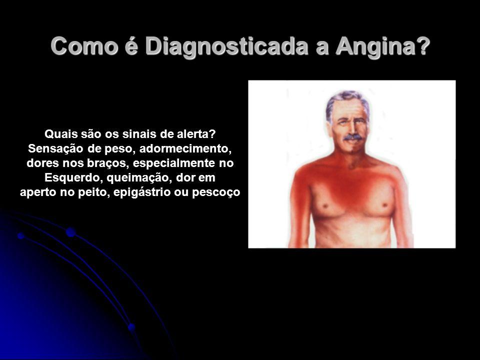 Como é Diagnosticada a Angina? Quais são os sinais de alerta? Sensação de peso, adormecimento, dores nos braços, especialmente no Esquerdo, queimação,