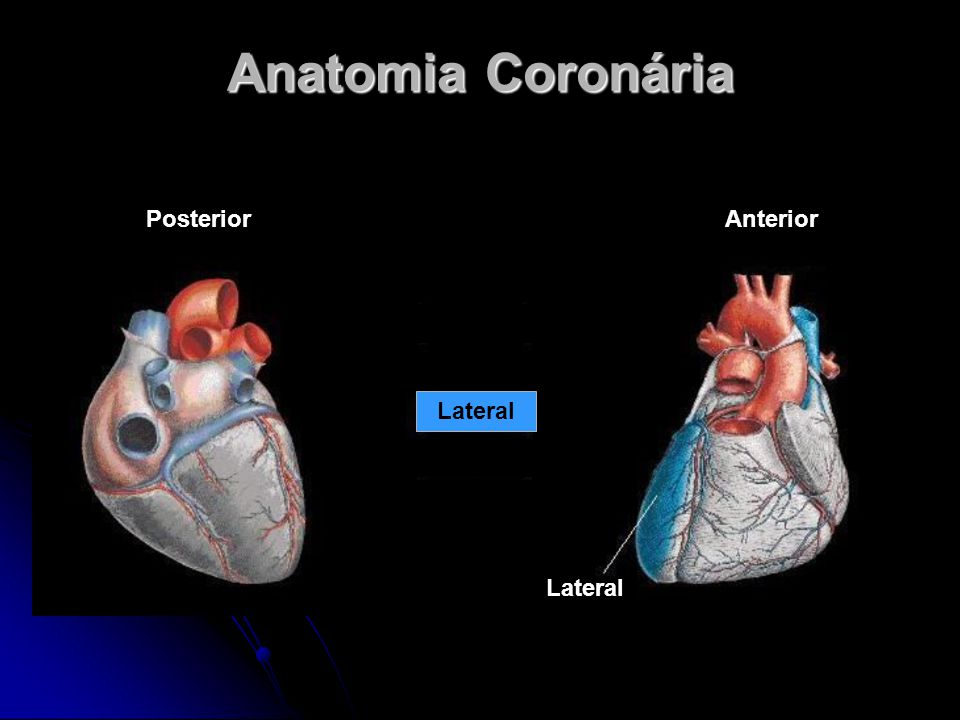 Lateral AnteriorPosterior Lateral Anatomia Coronária