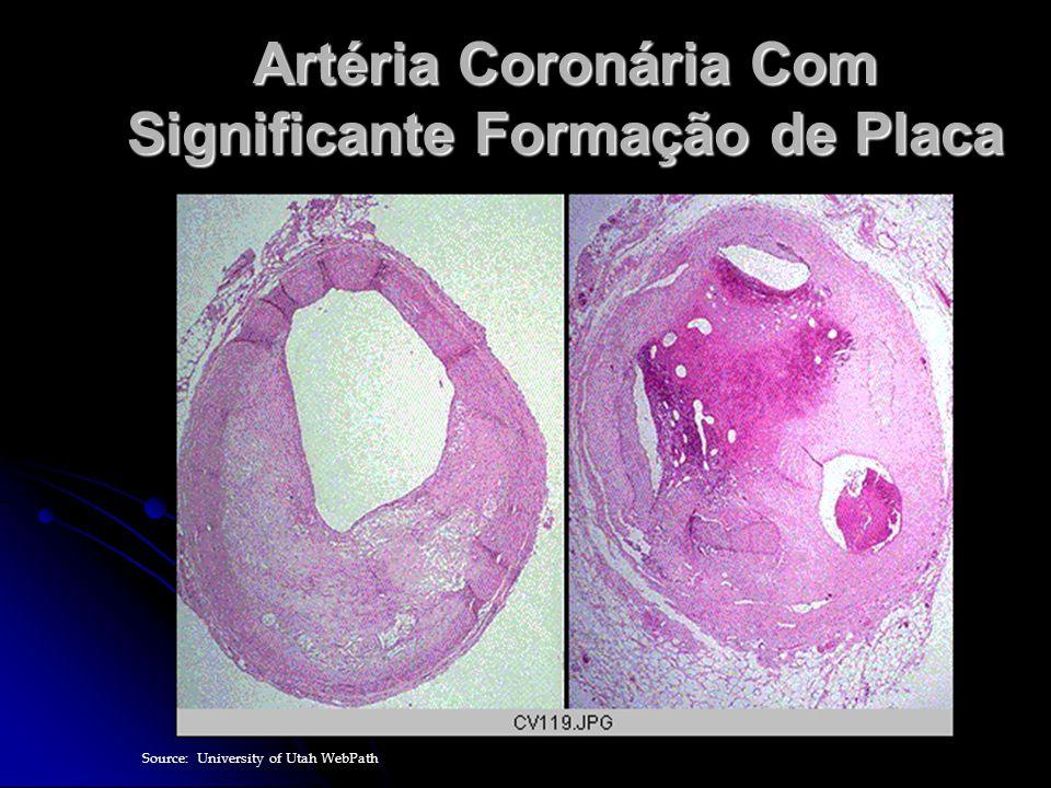 Artéria Coronária Com Significante Formação de Placa Source: University of Utah WebPath