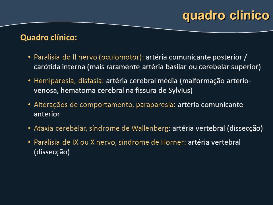 quadro clinico Quadro clínico: Paralisia do II nervo (oculomotor): artéria comunicante posterior / carótida interna (mais raramente artéria basilar ou