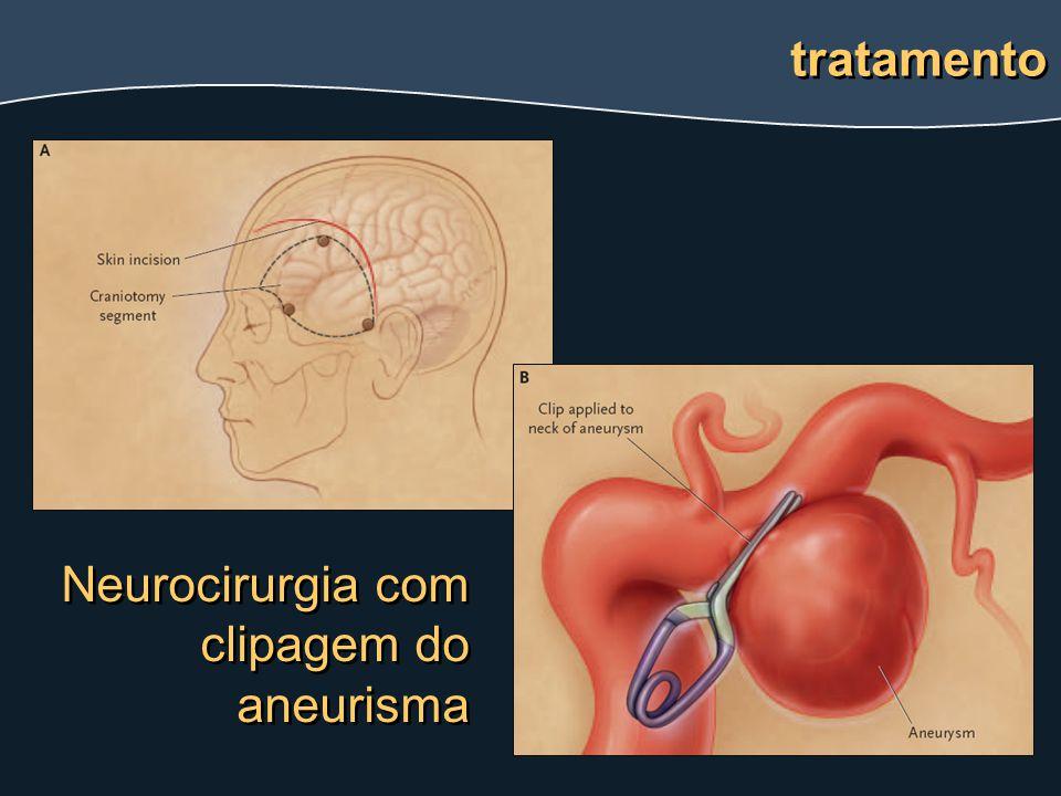 tratamento Neurocirurgia com clipagem do aneurisma