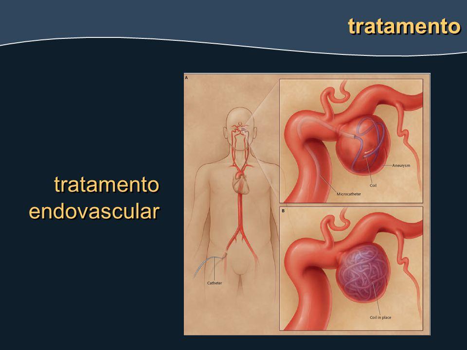 tratamento tratamento endovascular