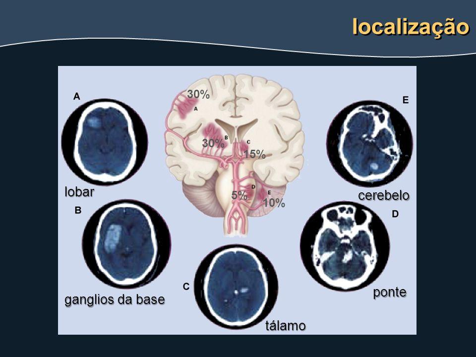 localização lobar ganglios da base tálamo ponte cerebelo 30% 15% 10% 5%