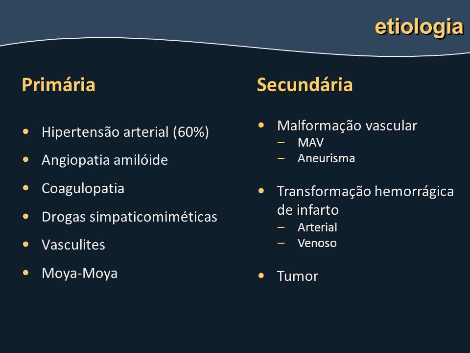 Primária Hipertensão arterial (60%) Angiopatia amilóide Coagulopatia Drogas simpaticomiméticas Vasculites Moya-Moya etiologia Secundária Malformação v