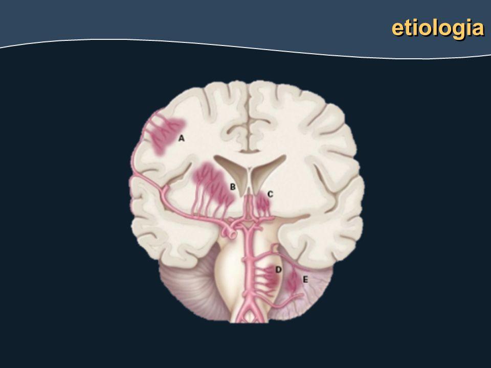 edema focal63% infarto47% hemorragia39% sinal do delta sinal do delta vazio Trombose venosa cerebral neuro-imagem
