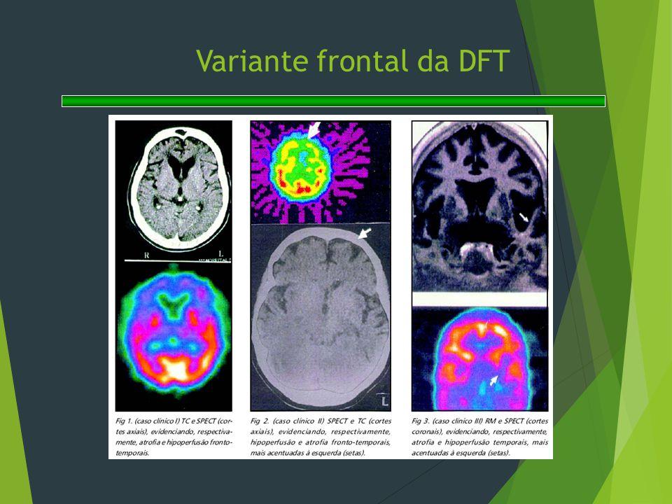 Variante frontal da DFT