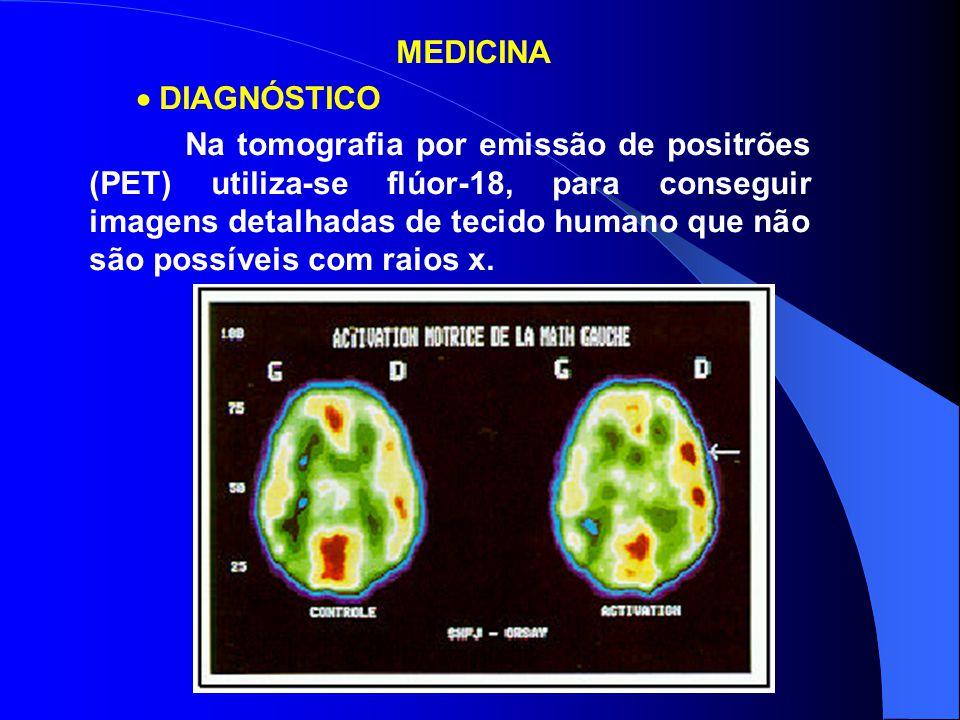 MEDICINA  DIAGNÓSTICO Na tomografia por emissão de positrões (PET) utiliza-se flúor-18, para conseguir imagens detalhadas de tecido humano que não sã