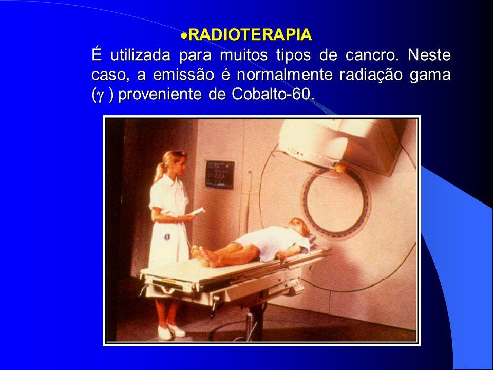  RADIOTERAPIA É utilizada para muitos tipos de cancro. Neste caso, a emissão é normalmente radiação gama (  ) proveniente de Cobalto-60.