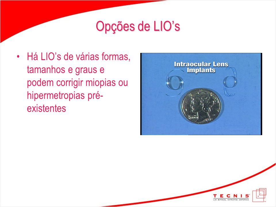 Opções de LIO's Há LIO's de várias formas, tamanhos e graus e podem corrigir miopias ou hipermetropias pré- existentes
