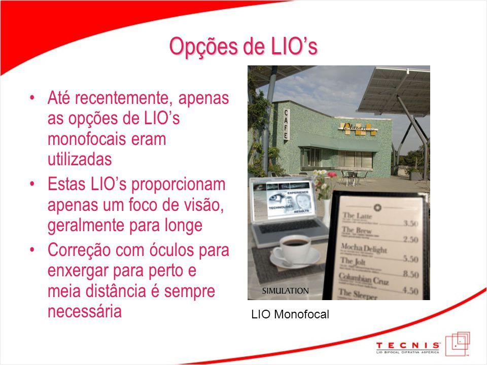 Até recentemente, apenas as opções de LIO's monofocais eram utilizadas Estas LIO's proporcionam apenas um foco de visão, geralmente para longe Correçã