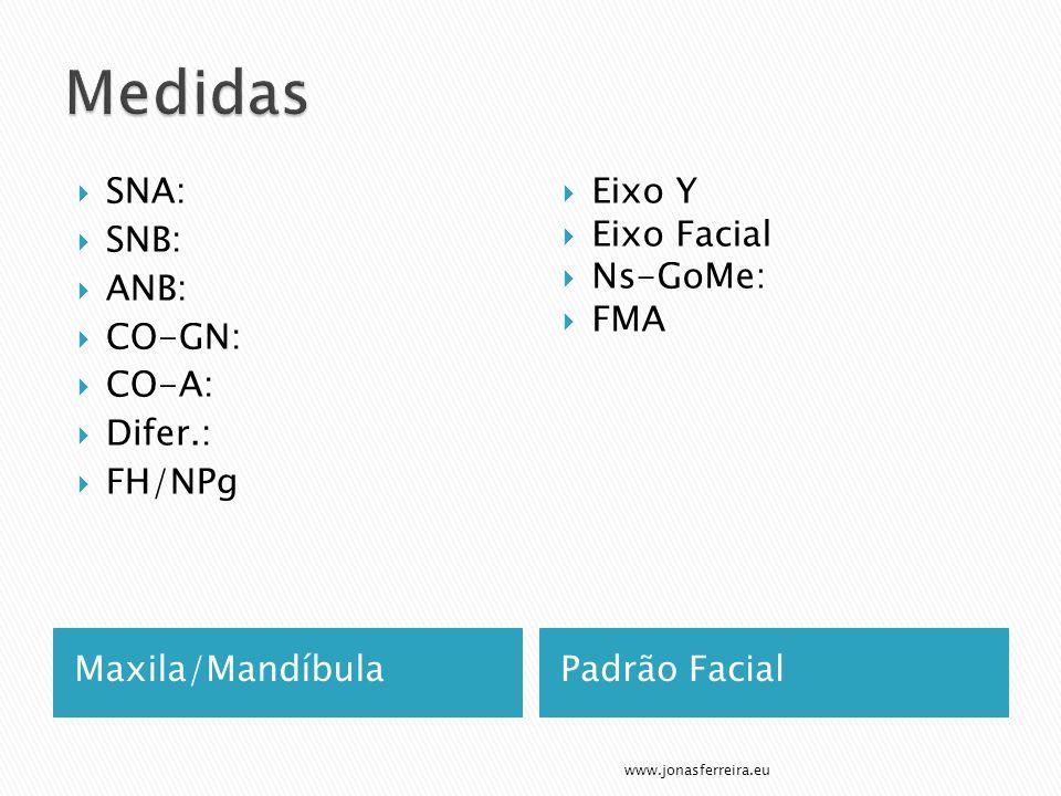 Maxila/MandíbulaPadrão Facial  SNA:  SNB:  ANB:  CO-GN:  CO-A:  Difer.:  FH/NPg  Eixo Y  Eixo Facial  Ns-GoMe:  FMA www.jonasferreira.eu