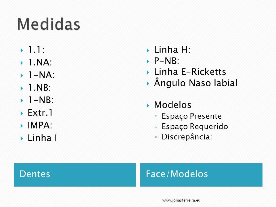 DentesFace/Modelos  1.1:  1.NA:  1-NA:  1.NB:  1-NB:  Extr.1  IMPA:  Linha I  Linha H:  P-NB:  Linha E-Ricketts  Ângulo Naso labial  Modelos ◦ Espaço Presente ◦ Espaço Requerido ◦ Discrepância: www.jonasferreira.eu