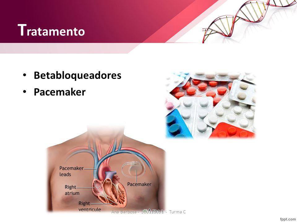 T ratamento Betabloqueadores Pacemaker Ana Barbosa - 500113051 - Turma C
