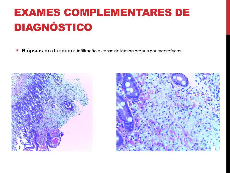EXAMES COMPLEMENTARES DE DIAGNÓSTICO  Biópsias do duodeno: infiltração extensa da lâmina própria por macrófagos