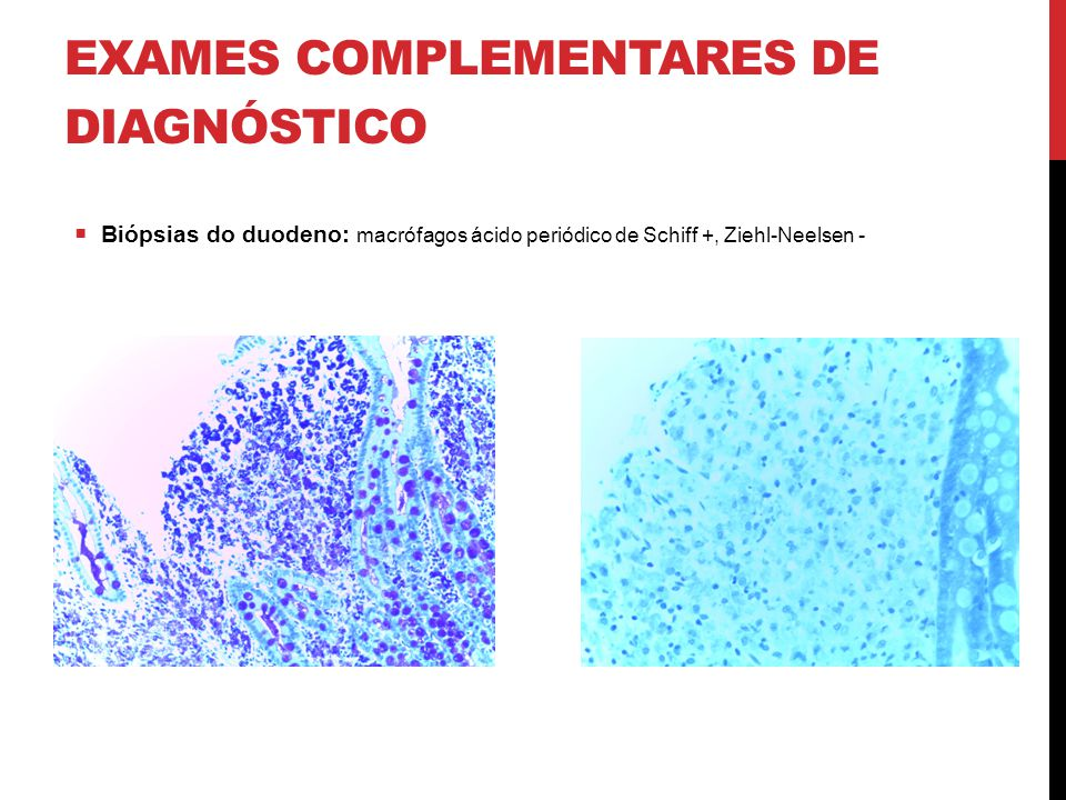 EXAMES COMPLEMENTARES DE DIAGNÓSTICO  Biópsias do duodeno: macrófagos ácido periódico de Schiff +, Ziehl-Neelsen -