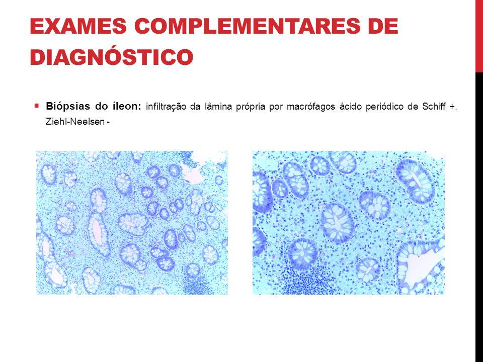 EXAMES COMPLEMENTARES DE DIAGNÓSTICO  Biópsias do íleon: infiltração da lâmina própria por macrófagos ácido periódico de Schiff +, Ziehl-Neelsen -
